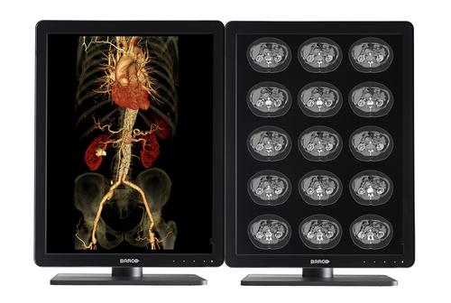 "Barco MDNC-3421 54.1 cm (21.3"") 2048 x 1536 pixels QXGA LCD"
